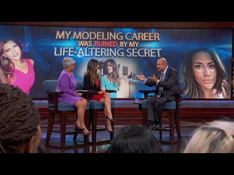 Former Model Shares Her Vitiligo Story with Freda Lewis-Hall