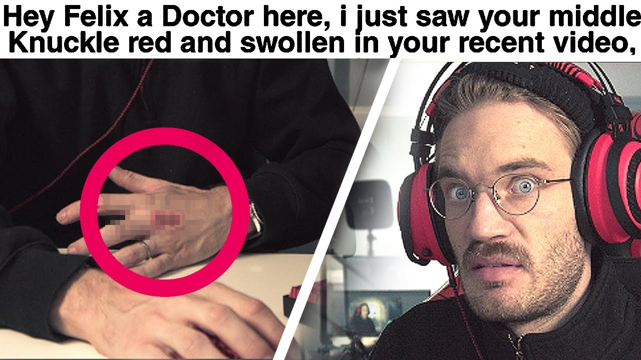 PewDiePie - Doctor Reacts To my Injury (serious)