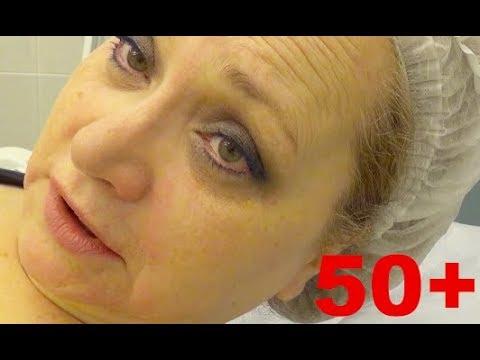 Лицо сползает, волосы выпадают! ЧТО ДЕЛАТЬ? Похудение в 50+ и возрастные изменения