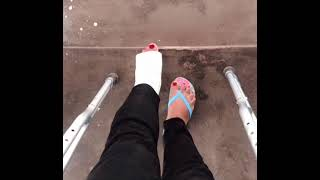 leg cast broken leg Crutches Red Nails