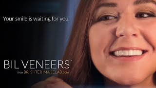 2017 Bilveneers TV Commercial $149 dn for Chipped, Broken or Crooked teeth   Brighter Image Lab