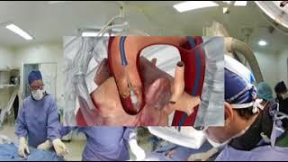 Instituto de Cardiologia - Implante Transcateter Valvar Aortico (TAVI)