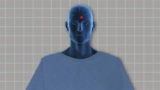 Deep Brain Stimulation: How It Works