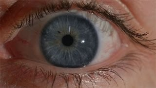 Chromosome 15 - Eye colour