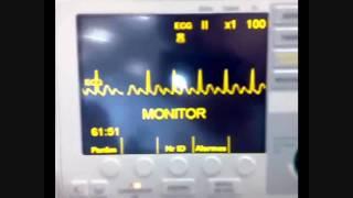 Eletrocardiograma - flutter