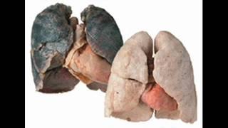 Harmfull Effects Of Smoking.wmv