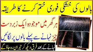 How To Remove Dandruff In Life Time | Natural Home Remedies 100% Result