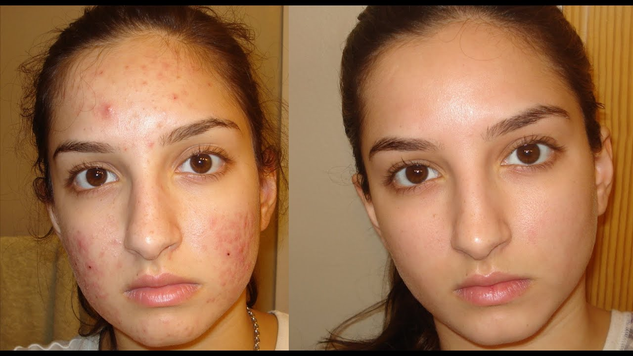 A true miracle- How I got rid of my acne. Daily skin-care routine.