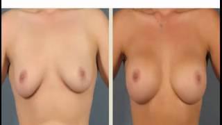 No es neceario la operacion mamas para agrandar