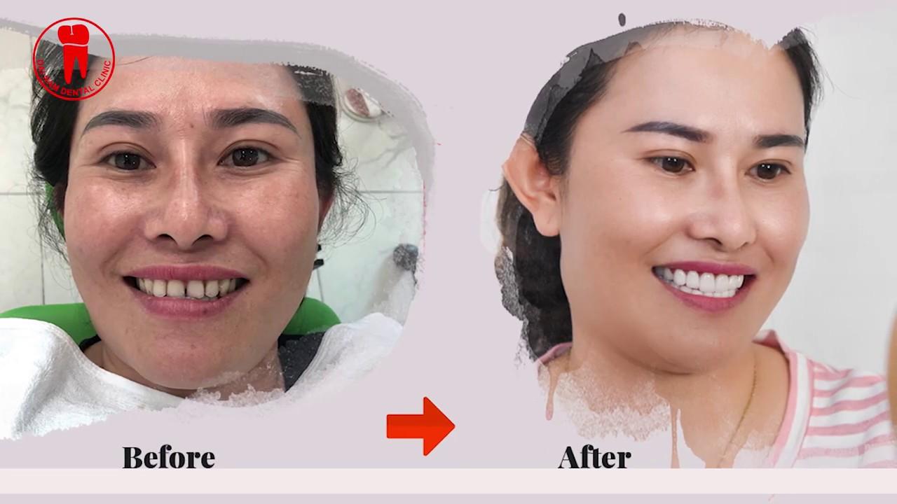 Chị Ngọc Xuân chia sẻ sau khi làm răng sứ