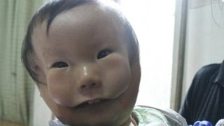 China's 'mask boy' Child appears to have two faces due to deformation