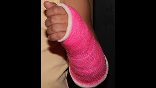 Training With A Cast In A Functional/Crossfit Gym