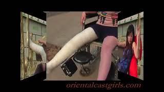Xuton LLC(Long Leg Cast)