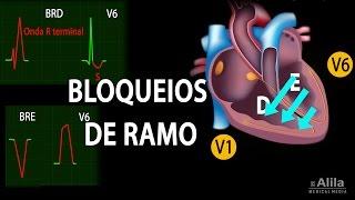 Bloqueios de Ramo Animação. Alila Medical Media Português