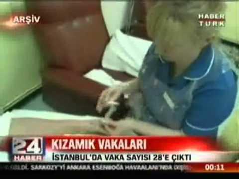 HABERTÜRK PROF. DR. ALİ İHSAN DOKUCU İSTANBULDA KIZAMIK VAKALARI.wmv