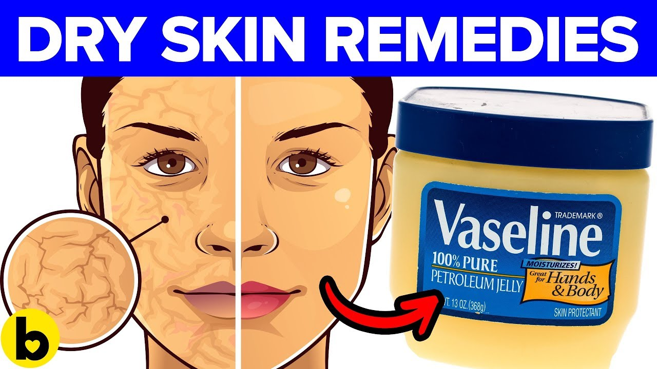 9 Remedies for your Dry Skin