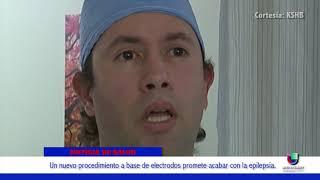 Un nuevo procedimiento a base de electrodos promete acabar con la epilepsia en Kansas Y Missouri
