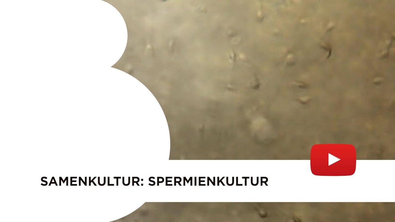 Samenkultur: Spermienkultur