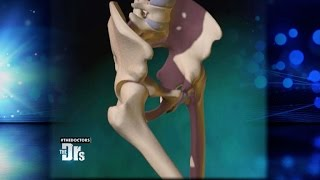 Hip Replacement to Enhance Sex?