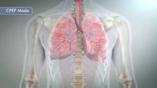 Hill-Rom   The MetaNeb® System    Prevent and Treat Pulmonary Atelectasis