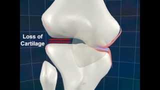 Osteoarthritis 3D Animation