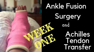 Ankle Fusion Surgery, bone graft and achilles tendon transfer Surgery (week one). Road to Recovery