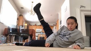 Bunion Surgery Recovery (Part 2)