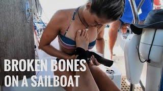 BROKEN BONES on a SAILBOAT in remote islands Los Roques - UNTIE THE LINES IV #72