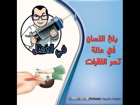 في العضل | منع بلع اللسان في حالة الاصابة العنيفه والكسور