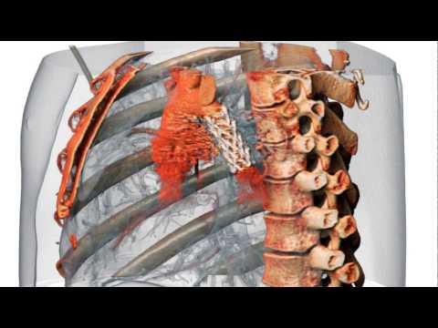 3D Aorta Stent