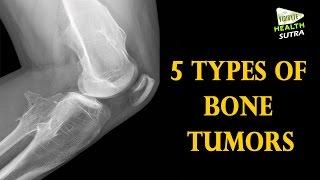 5 Types of Bone Tumors  -  Health Sutra
