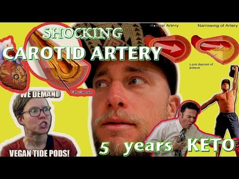 Shocking CAROTID ARTERY Exam 5 Yrs KETO   Am I DYIN, Doc?   Carnivore Diet LABS pt 2
