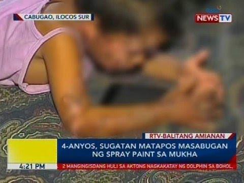 4-anyos, sugatan matapos masabugan ng spray paint sa mukha