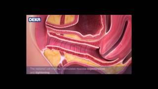 MONALISA TOUCH - La nueva técnica láser para el tratamiento de la atrofia vaginal
