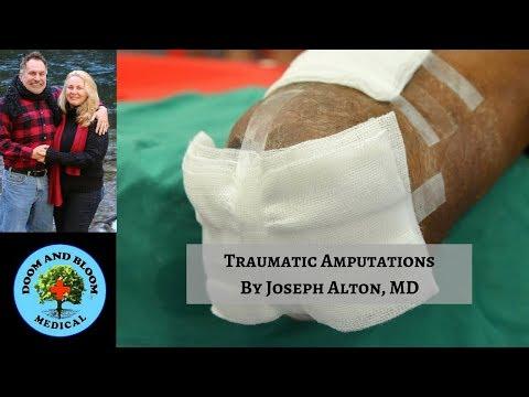 Amputation Injuries in Off Grid Survival Scenarios