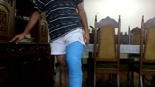 Long Leg Cast - Blue brazilian caster..... LLC