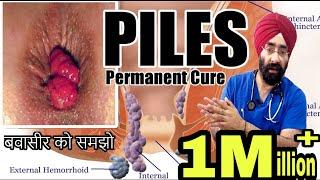 बवासीर   Piles   Hemorrhoids : समझो कारन से इलाज तक । १००% विज्ञान   हिंदी में   Dr.Education