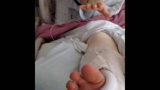 Broken ankle slideshow