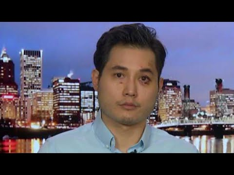 Andy Ngo, Anti-fascism And Milkshakes