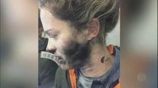 Fones de ouvido explodem e deixam mulher ferida durante voo