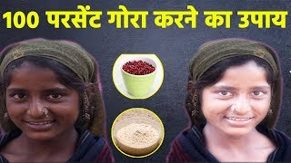 How to become fair fast easy natural way with anar