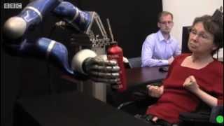 Paciente paralizada que mueve brazo robotico con pensamientos