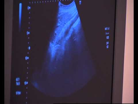Özel Bodrum Hastanesi / Dr.Emrah Doğan / Radyoloji Uzmanı / Radyoloji Nedir?