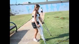 Arian - Long Leg Cast - She broken leg in skateboard accident