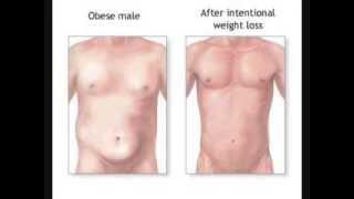 Lose Belly Fat Briskly in Three Wonderful Steps