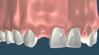 ortodontia falta de dentes