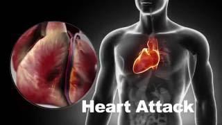 CardioVisual — Heart health, simplified
