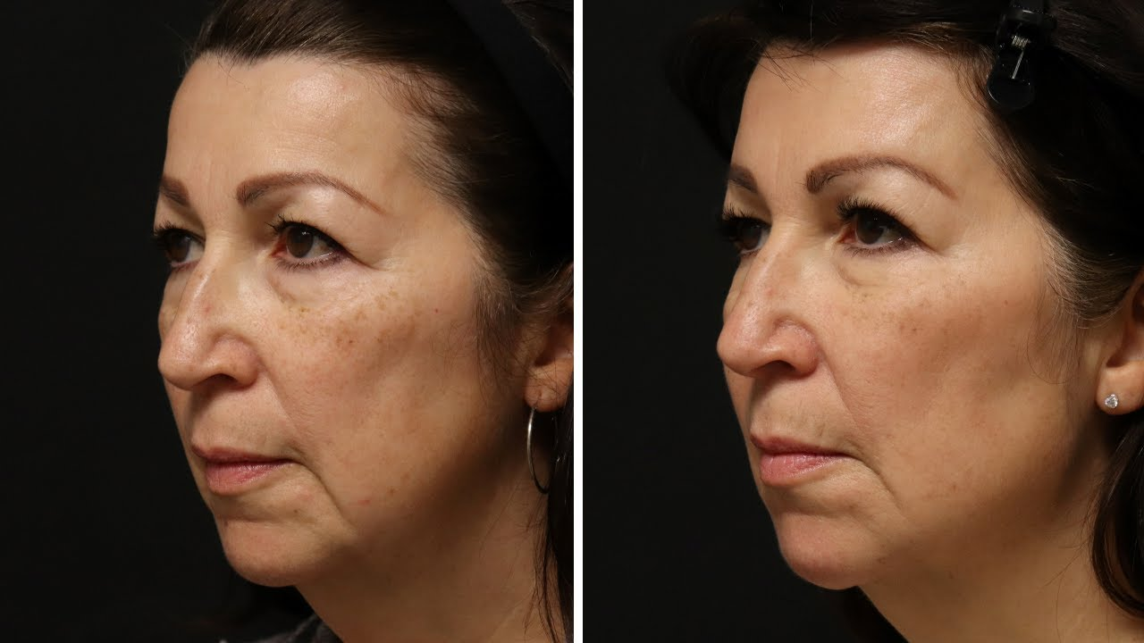 Preview of Dermal filler and Botox Cosmetic®: Gail 57 y.o.