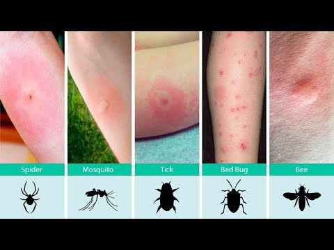 What Should You Put On Bed Bug Bites