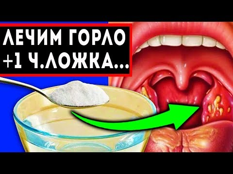 Болит Горло: как быстро вылечить ангину, гланды, тонзиллит photo